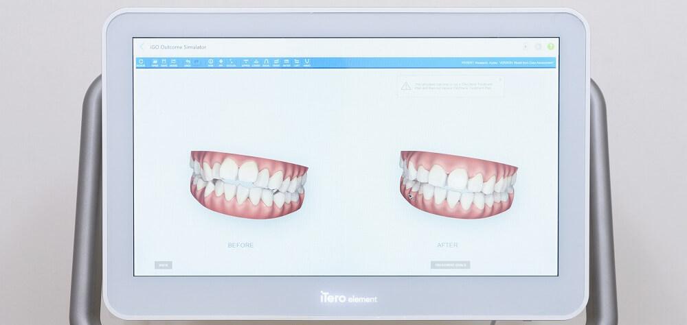 歯並びの矯正とは